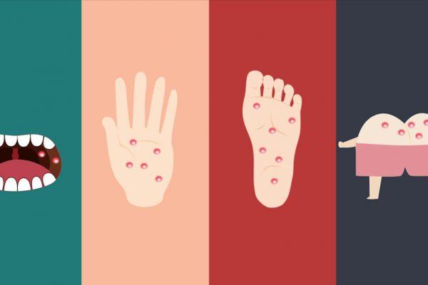 Nhận biết dấu hiệu bệnh tay chân miệng ở trẻ và cách phòng ngừa, điều trị